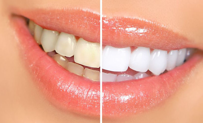 dr-baum-cosmetic-dentistry-teeth-whitening-services